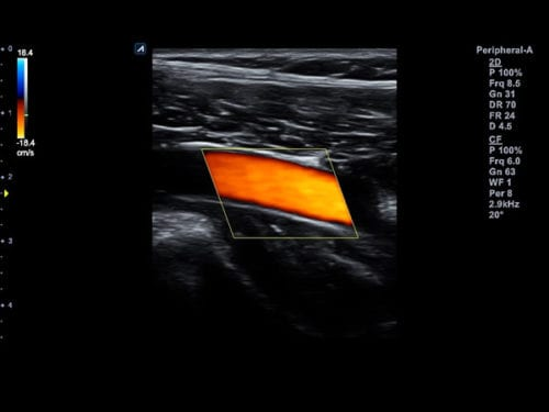 Artéria periférica da extremidade inferior no modo Fluxo de cores