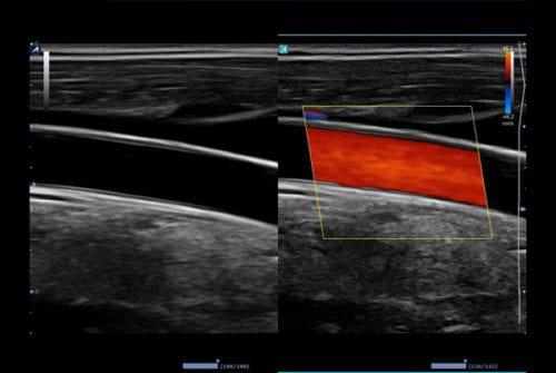 Artéria caróide comum no modo Dual Live