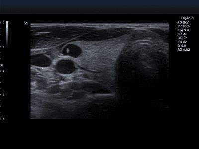 Imex Medical - Optimal Imaging Suite