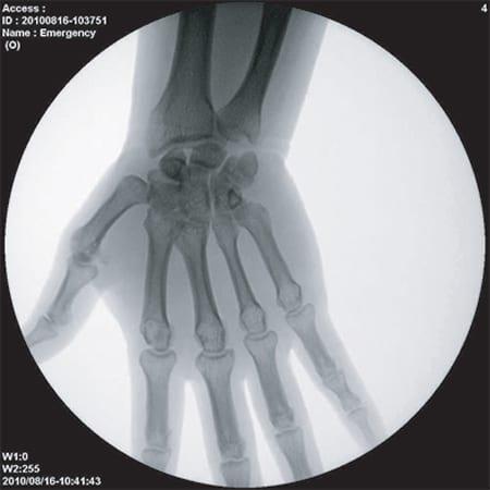 ImexMedical - UniquePremium-Clínica - 12