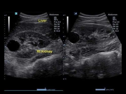 Exibição lado a lado no Dual Mode, auxiliando na fácil interpretação anatômica