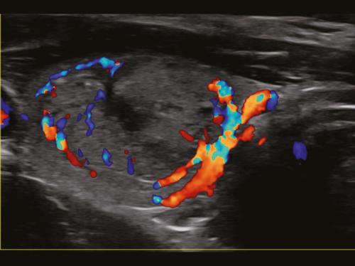 Nódulo da tireoide em modo CF